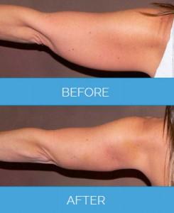 Vaser-Liposuction1.1