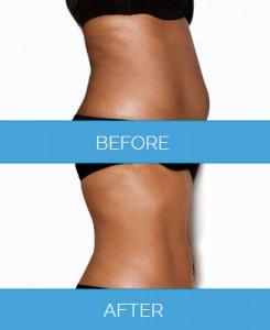 Vaser-Liposuction1.10