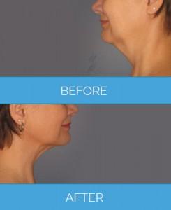 Vaser-Liposuction1.5